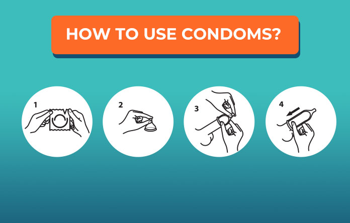 How to Use Condoms